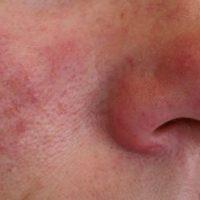 Rosacea, een huidaandoening met roodheid, puitjes en rode vaatjes